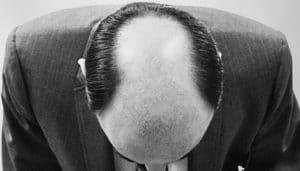 trous dans la barbe tonsure