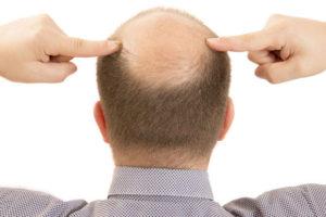 calvitie 2 - MAN ITSELF - Spécialiste des produits de soin visage, rasage, corps, cheveux, bouche, accessoires et idées cadeaux homme