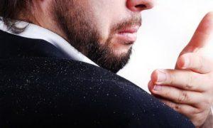 pellicules - MAN ITSELF - Spécialiste des produits de soin visage, rasage, corps, cheveux, bouche, accessoires et idées cadeaux homme